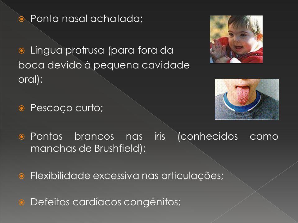 Ponta nasal achatada; Língua protrusa (para fora da boca devido à pequena cavidade oral); Pescoço curto; Pontos brancos nas íris (conhecidos como manc