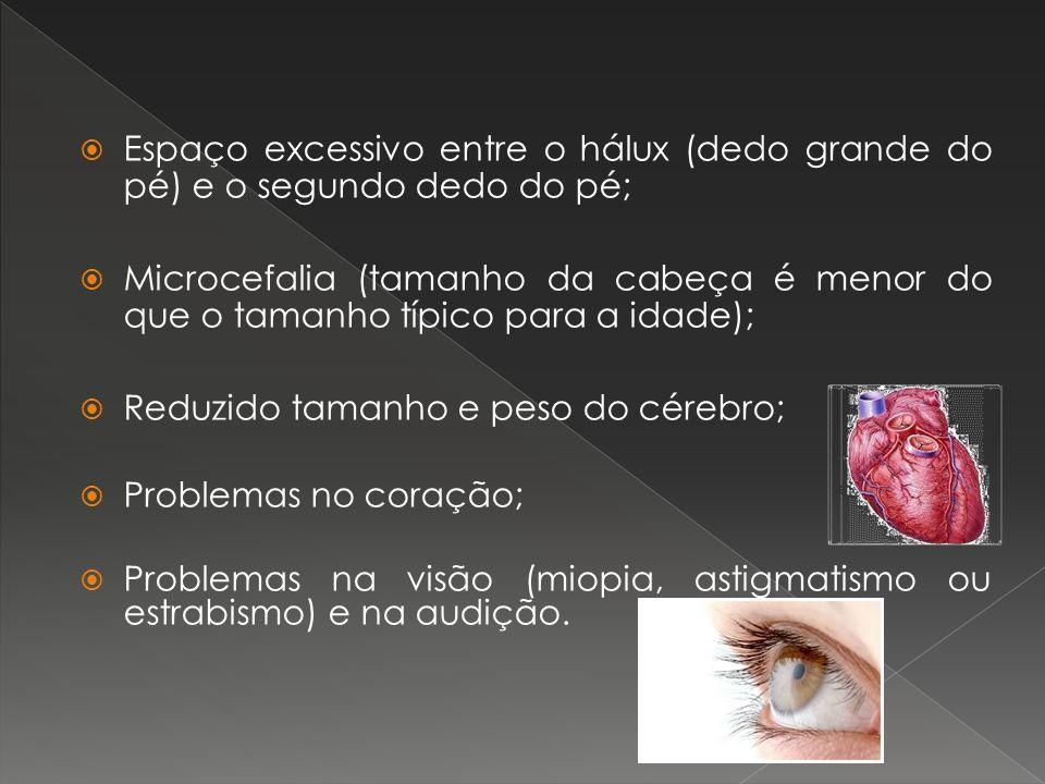 Espaço excessivo entre o hálux (dedo grande do pé) e o segundo dedo do pé; Microcefalia (tamanho da cabeça é menor do que o tamanho típico para a idad