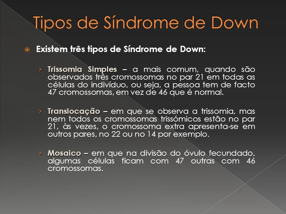 Existem três tipos de Síndrome de Down: Trissomia Simples – Trissomia Simples – a mais comum, quando são observados três cromossomas no par 21 em toda