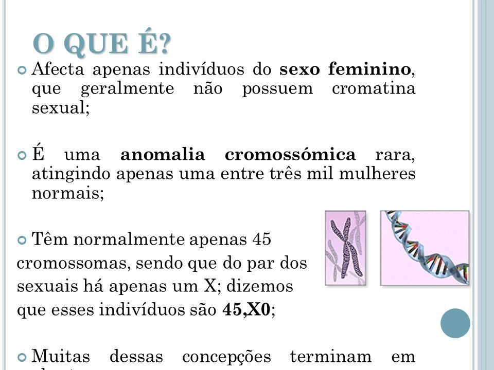 O QUE É? Afecta apenas indivíduos do sexo feminino, que geralmente não possuem cromatina sexual; É uma anomalia cromossómica rara, atingindo apenas um