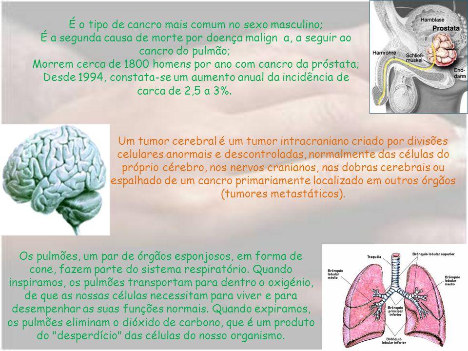 É o tipo de cancro mais comum no sexo masculino; É a segunda causa de morte por doença malign a, a seguir ao cancro do pulmão; Morrem cerca de 1800 homens por ano com cancro da próstata; Desde 1994, constata-se um aumento anual da incidência de carca de 2,5 a 3%.