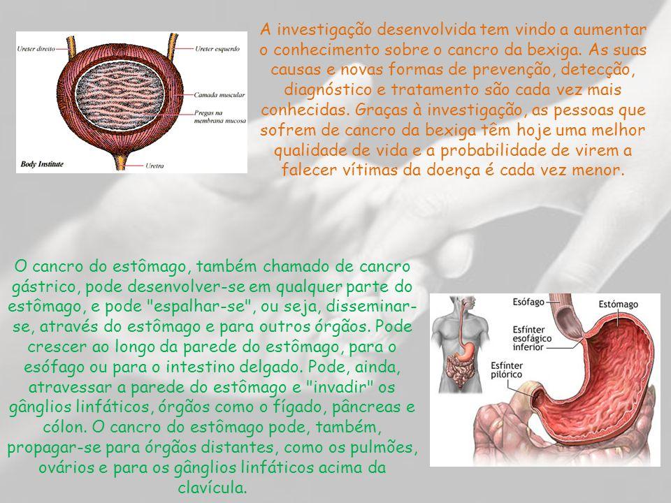 A investigação desenvolvida tem vindo a aumentar o conhecimento sobre o cancro da bexiga.