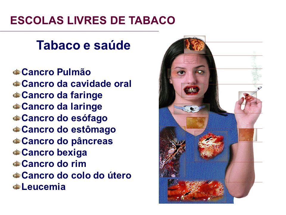 ESCOLAS LIVRES DE TABACO Tabaco e saúde Cancro Pulmão Cancro da cavidade oral Cancro da faringe Cancro da laringe Cancro do esófago Cancro do estômago