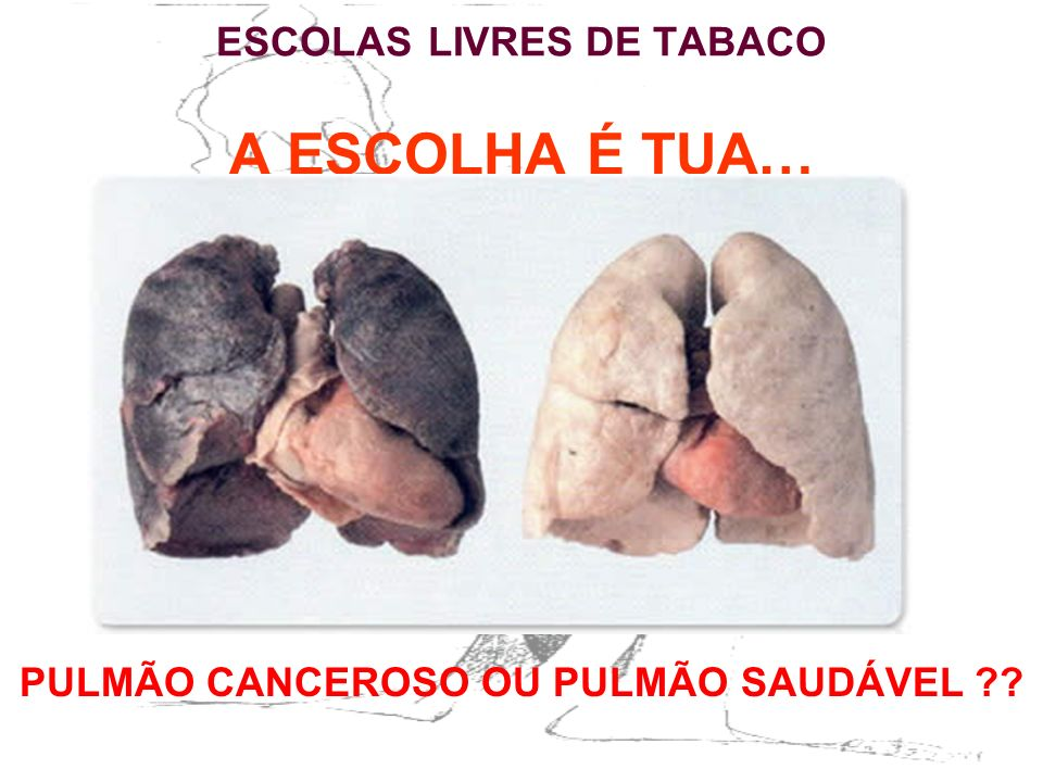 ESCOLAS LIVRES DE TABACO A ESCOLHA É TUA… PULMÃO CANCEROSO OU PULMÃO SAUDÁVEL ??