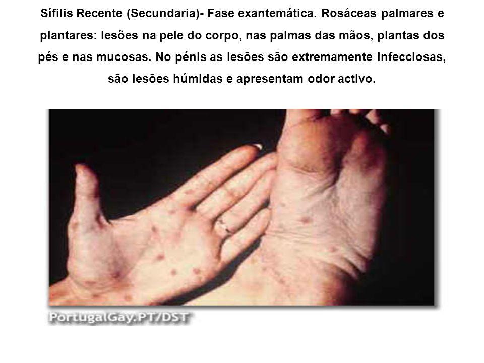 Sífilis Recente (Secundaria)- Fase exantemática. Rosáceas palmares e plantares: lesões na pele do corpo, nas palmas das mãos, plantas dos pés e nas mu