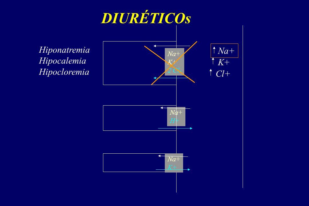 DIURÉTICOs Na+ K+ 2 Cl- Na+ H+ Na+ K+ Na+ K+ Cl+ Hiponatremia Hipocalemia Hipocloremia