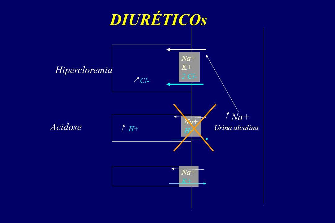 DIURÉTICOs Na+ K+ 2 Cl- Na+ H+ Na+ K+ Acidose H+ Urina alcalina Na+ Hipercloremia Cl-