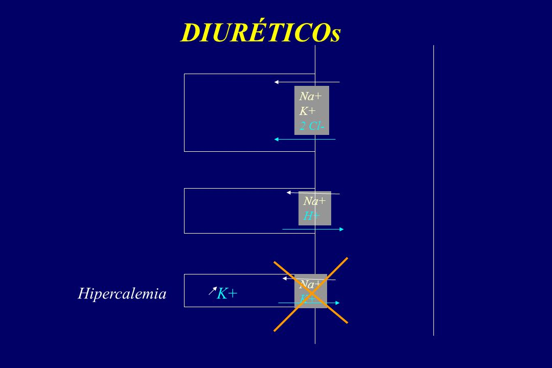 DIURÉTICOs Na+ K+ 2 Cl- Na+ H+ Na+ K+ HipercalemiaK+