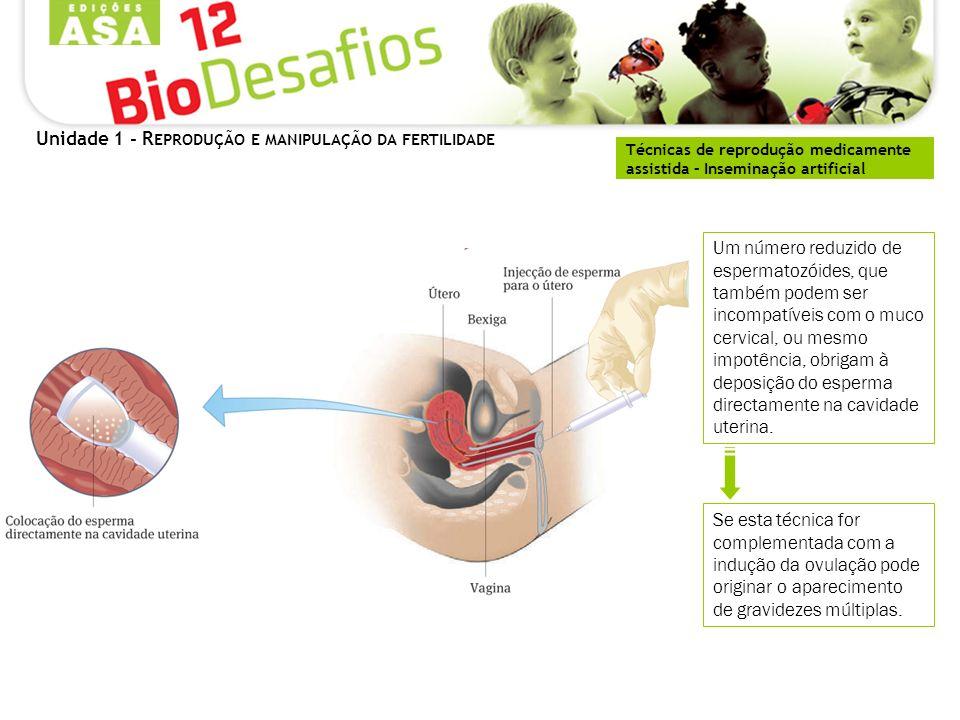 Unidade 1 - R EPRODUÇÃO E MANIPULAÇÃO DA FERTILIDADE Técnicas de reprodução medicamente assistida – Inseminação artificial Um número reduzido de espermatozóides, que também podem ser incompatíveis com o muco cervical, ou mesmo impotência, obrigam à deposição do esperma directamente na cavidade uterina.