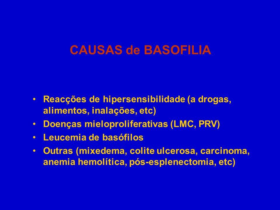 CAUSAS de BASOFILIA Reacções de hipersensibilidade (a drogas, alimentos, inalações, etc) Doenças mieloproliferativas (LMC, PRV) Leucemia de basófilos