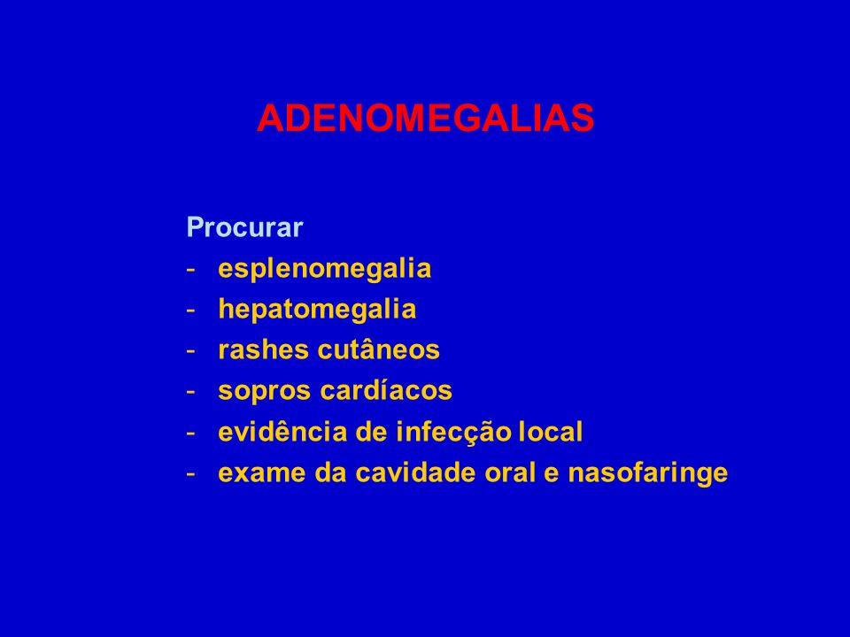 ADENOMEGALIAS Procurar -esplenomegalia -hepatomegalia -rashes cutâneos -sopros cardíacos -evidência de infecção local -exame da cavidade oral e nasofa