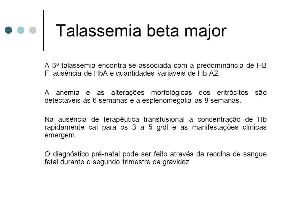 Talassemia beta major A β o talassemia encontra-se associada com a predominância de HB F, ausência de HbA e quantidades variáveis de Hb A2. A anemia e