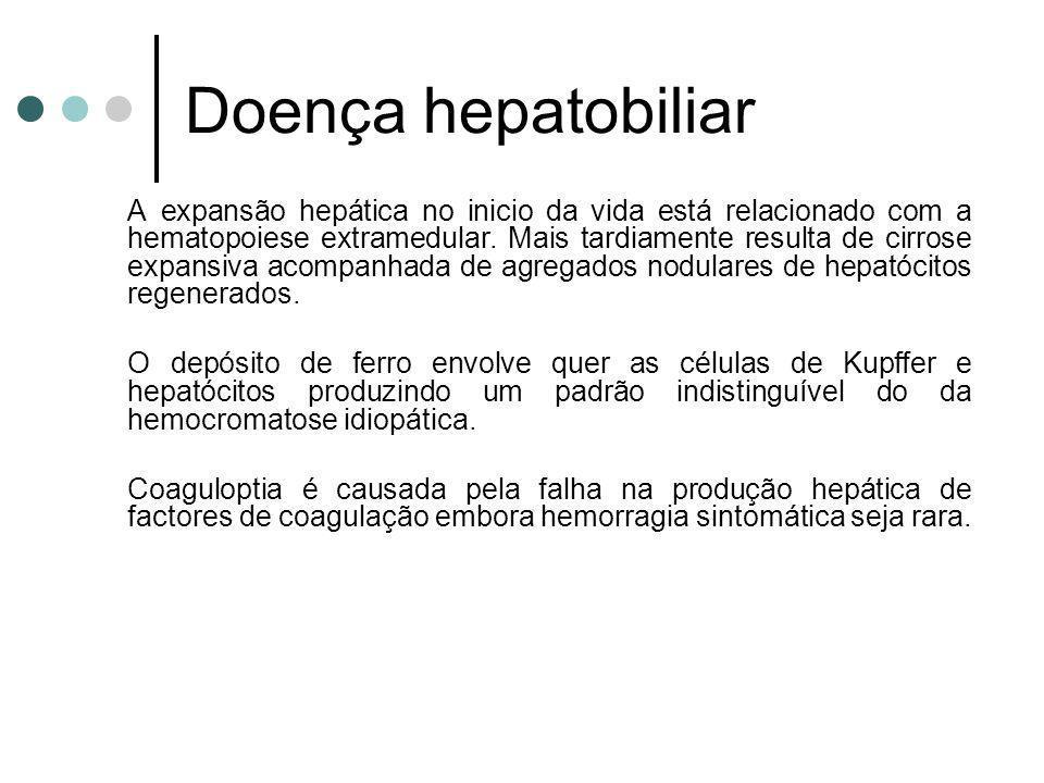 Doença hepatobiliar A expansão hepática no inicio da vida está relacionado com a hematopoiese extramedular. Mais tardiamente resulta de cirrose expans