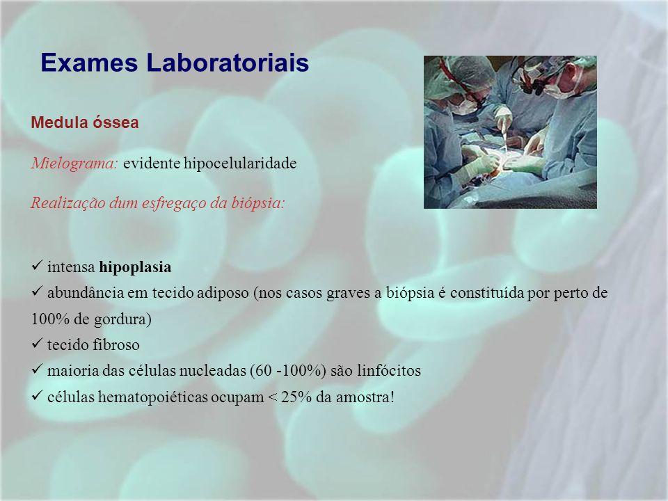 Exames Laboratoriais Medula óssea Mielograma: evidente hipocelularidade Realização dum esfregaço da biópsia: intensa hipoplasia abundância em tecido a