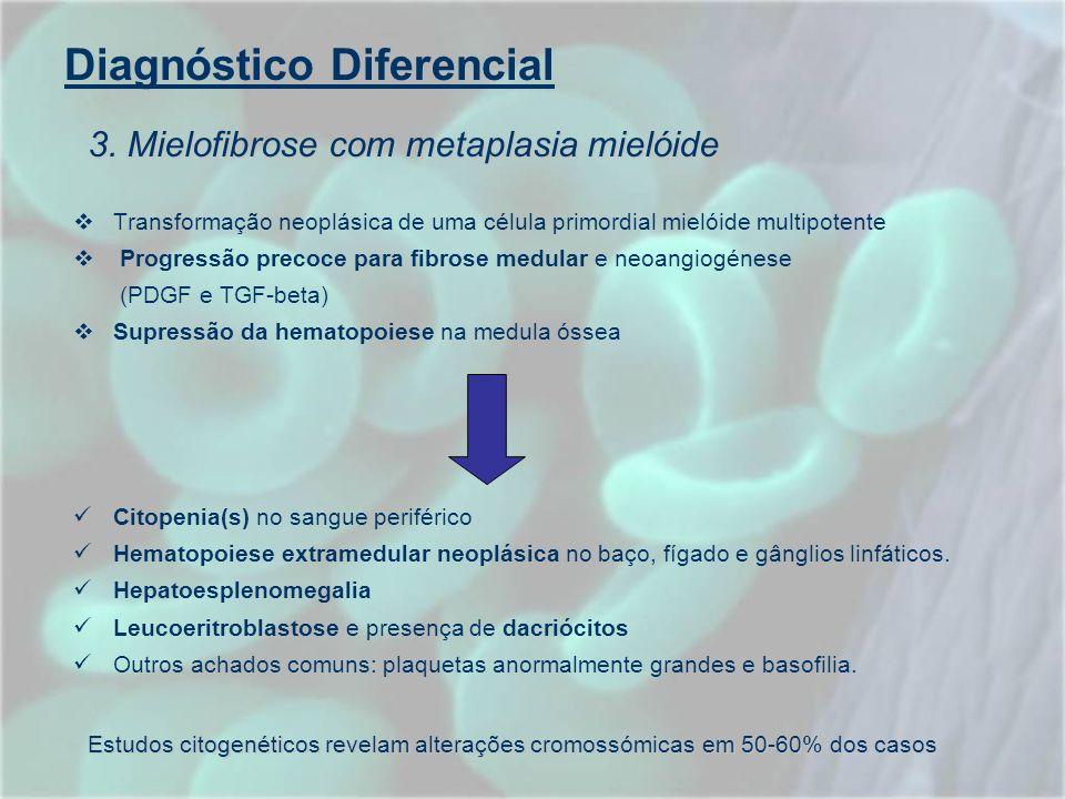 Diagnóstico Diferencial Transformação neoplásica de uma célula primordial mielóide multipotente Progressão precoce para fibrose medular e neoangiogéne