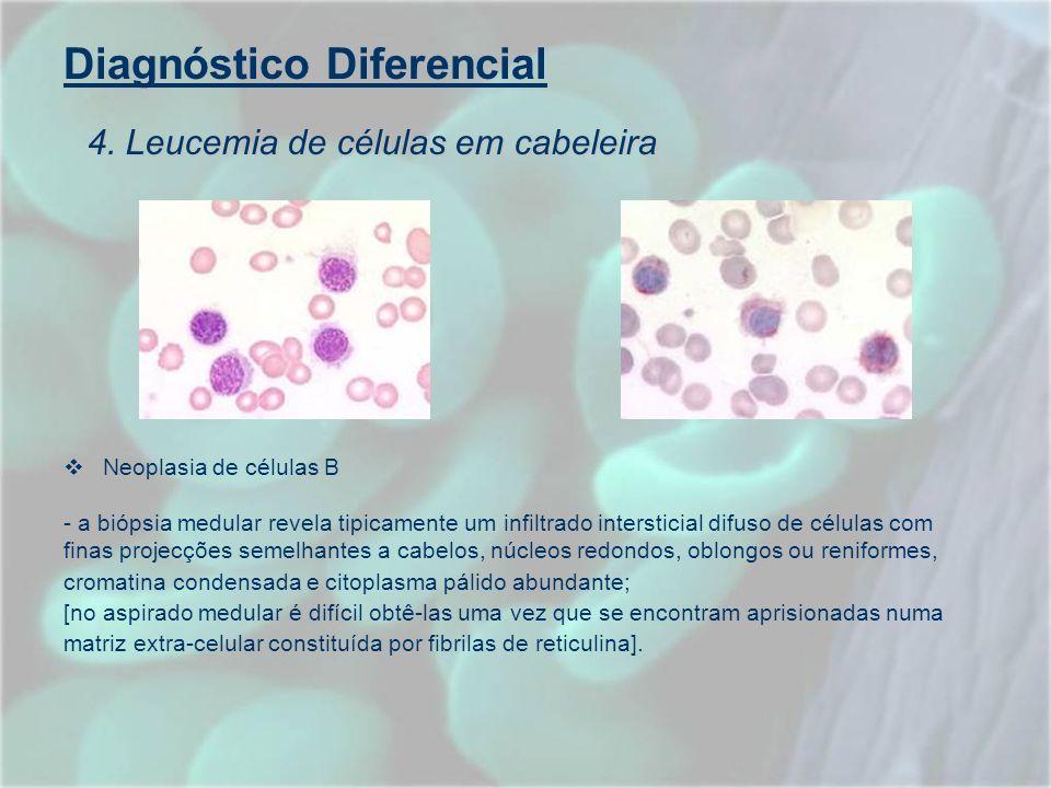 Diagnóstico Diferencial Neoplasia de células B - a biópsia medular revela tipicamente um infiltrado intersticial difuso de células com finas projecçõe