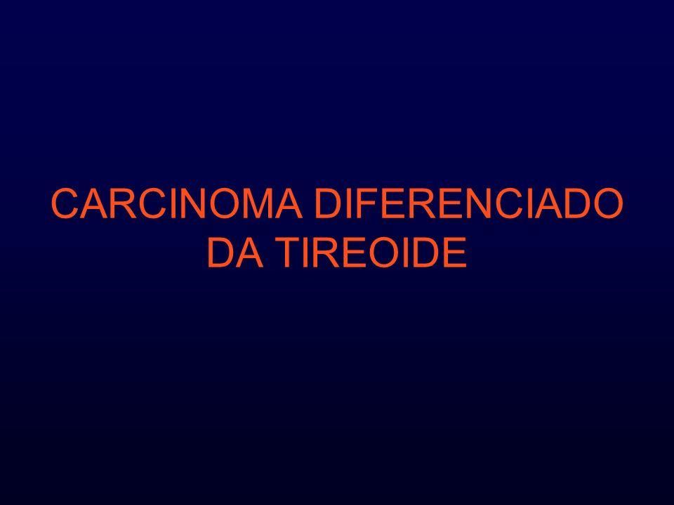 Nódulo da tireóide : Palpável em 4 a 7% dos adultos americanos aumentam 0,08% / ano Identificável em aprox.