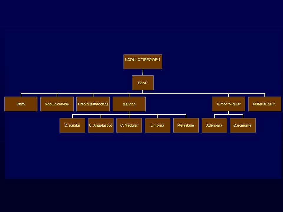 NODULO TIREOIDEU BAAF CistoNodulo coloide Tireoidite linfocitica Maligno C. papilarC. AnaplasticoC. MedularLinfomaMetastase Tumor folicular AdenomaCar