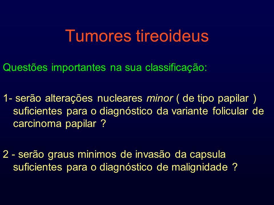 Tumores tireoideus Questões importantes na sua classificação: 1- serão alterações nucleares minor ( de tipo papilar ) suficientes para o diagnóstico d