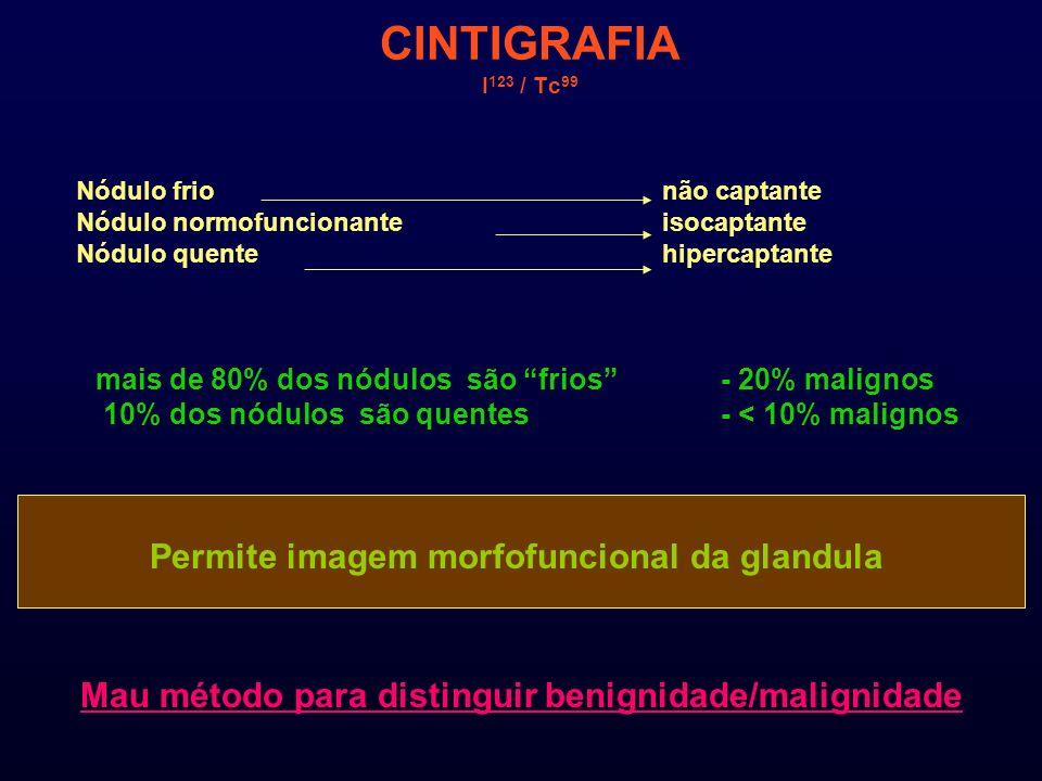 CINTIGRAFIA I 123 / Tc 99 Nódulo frionão captante Nódulo normofuncionanteisocaptante Nódulo quentehipercaptante mais de 80% dos nódulos são frios - 20