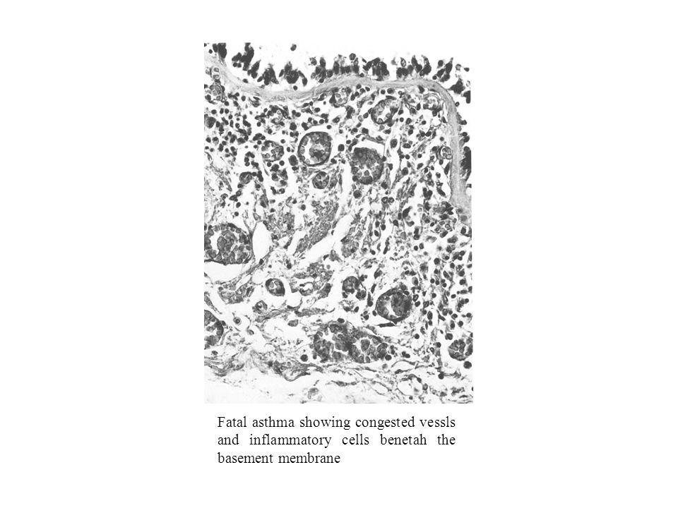 Xantinas Efeitos terapêuticos –Relaxamento músculo liso brônquico –Redução da libertação de mediadores inflamatórios mastocitários –Melhoria da contractilidade diafragmática –Estimulação dos centros respiratórios medulares