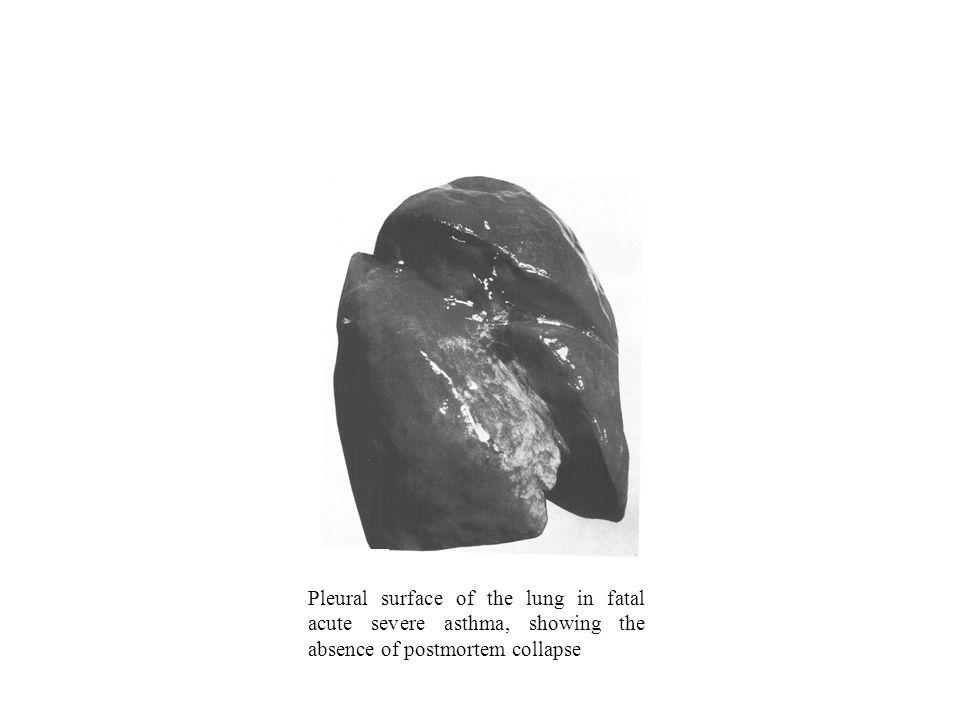 Classificação da Asma Moderada persistente –Sintomas diários –Exacerbações afectam actividade e sono –Sintomas noctunos mais que uma vez por semana –Uso diário de aminas 2 de curta duração –FEV 1 ou PEF 60-80% previsto –PEF ou FEV 1 variabilidade < 30% Grave persistente –Sintomas diários –Exacerbações frequentes –Sintomas noctunos frequentes –FEV 1 ou PEF < 60% previsto –PEF ou FEV 1 variabilidade > 30% Global Strategy for Asthma Management and Prevention, NIH - NHLBI, Bethesda 2002
