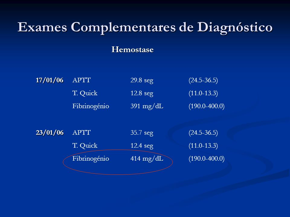 Exames Complementares de Diagnóstico Hemostase APTT29.8 seg(24.5-36.5) T. Quick12.8 seg(11.0-13.3) Fibrinogénio391 mg/dL(190.0-400.0)17/01/06 23/01/06
