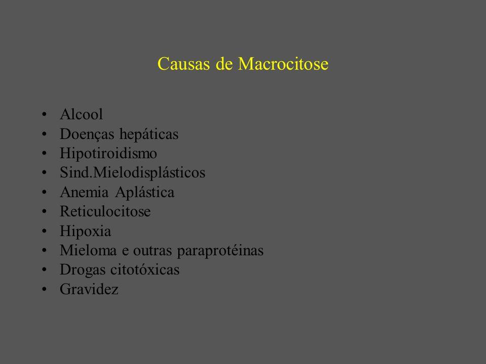 Causas de Macrocitose Alcool Doenças hepáticas Hipotiroidismo Sind.Mielodisplásticos Anemia Aplástica Reticulocitose Hipoxia Mieloma e outras paraprotéinas Drogas citotóxicas Gravidez
