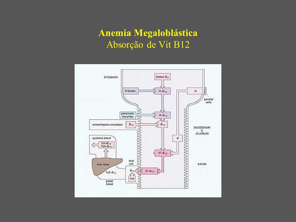 Anemia Megaloblástica Absorção de Vit B12