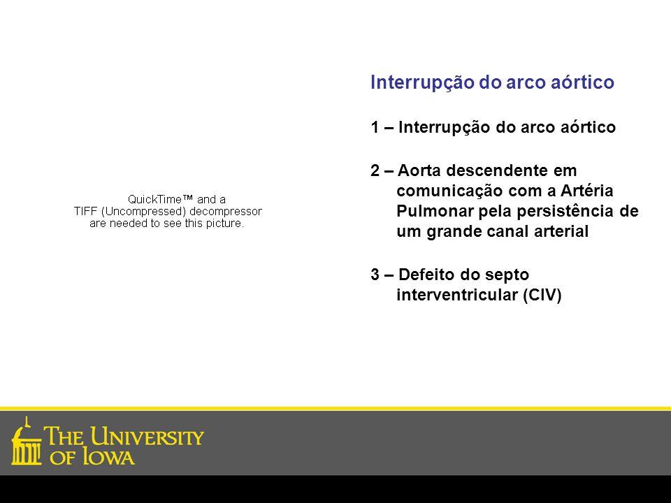 Interrupção do arco aórtico 1 – Interrupção do arco aórtico 2 – Aorta descendente em comunicação com a Artéria Pulmonar pela persistência de um grande
