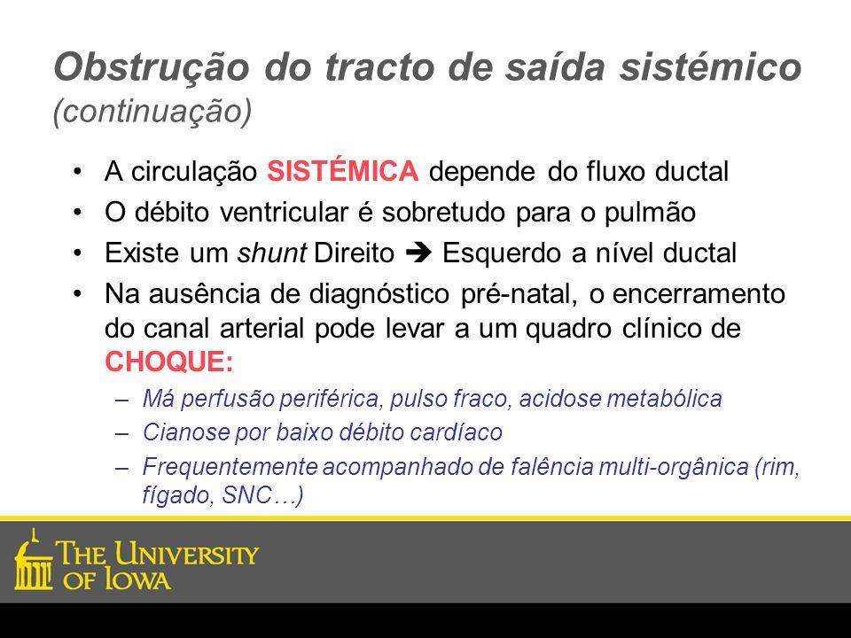 Obstrução do tracto de saída sistémico (continuação) A circulação SISTÉMICA depende do fluxo ductal O débito ventricular é sobretudo para o pulmão Exi