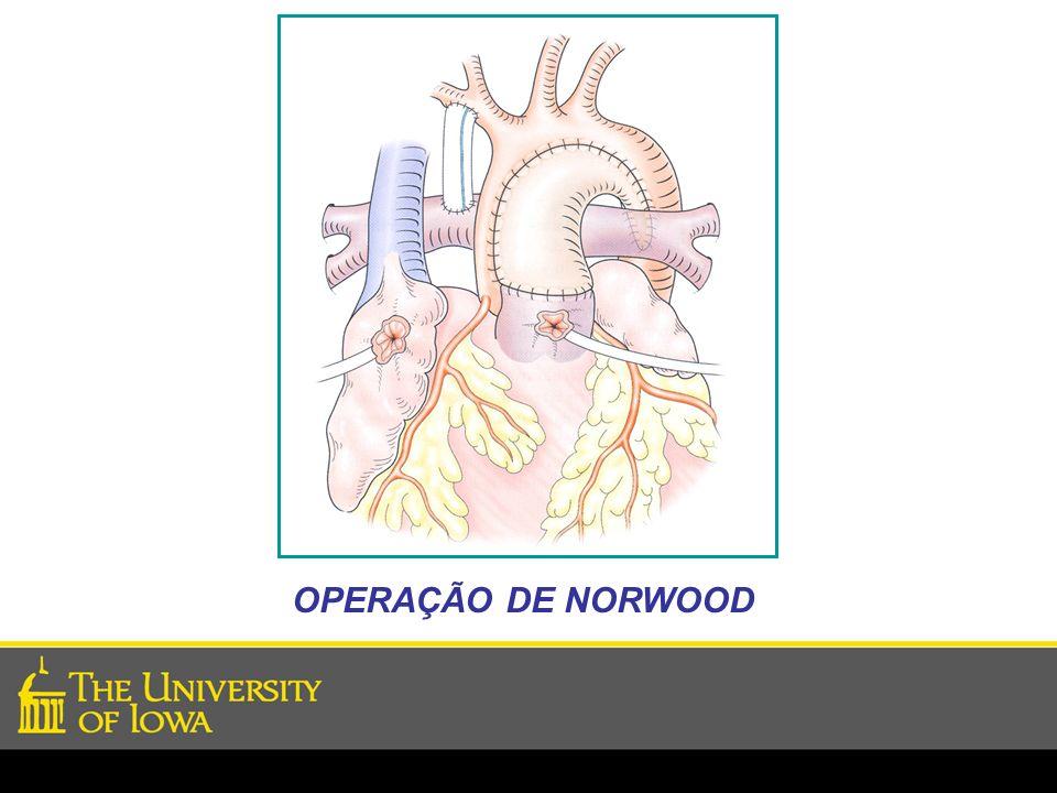 OPERAÇÃO DE NORWOOD