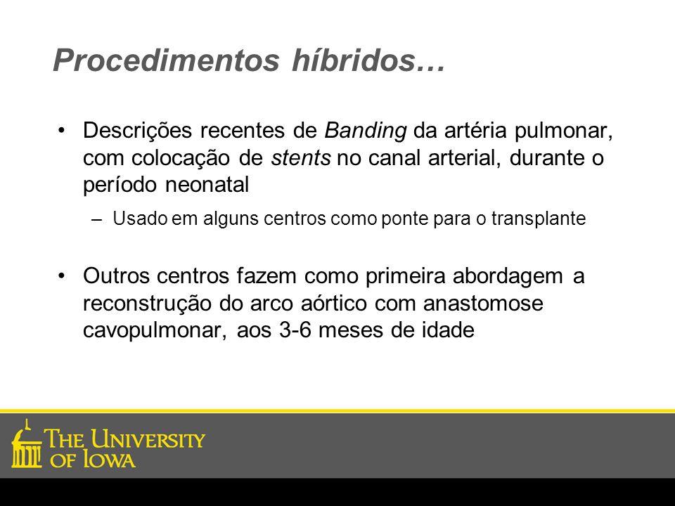 Procedimentos híbridos… Descrições recentes de Banding da artéria pulmonar, com colocação de stents no canal arterial, durante o período neonatal –Usa