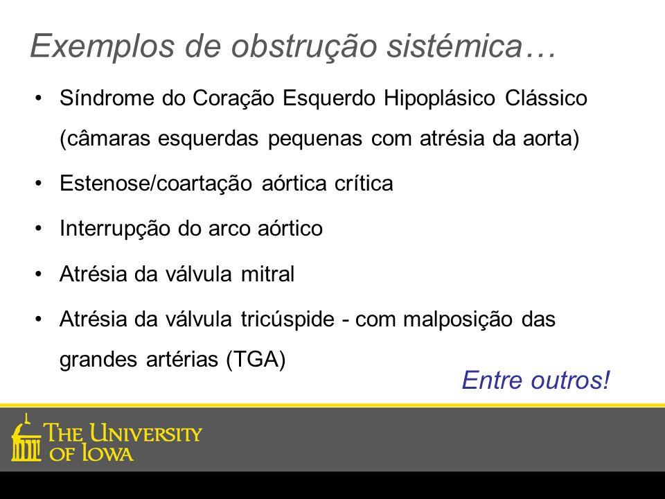 Exemplos de obstrução sistémica… Síndrome do Coração Esquerdo Hipoplásico Clássico (câmaras esquerdas pequenas com atrésia da aorta) Estenose/coartaçã