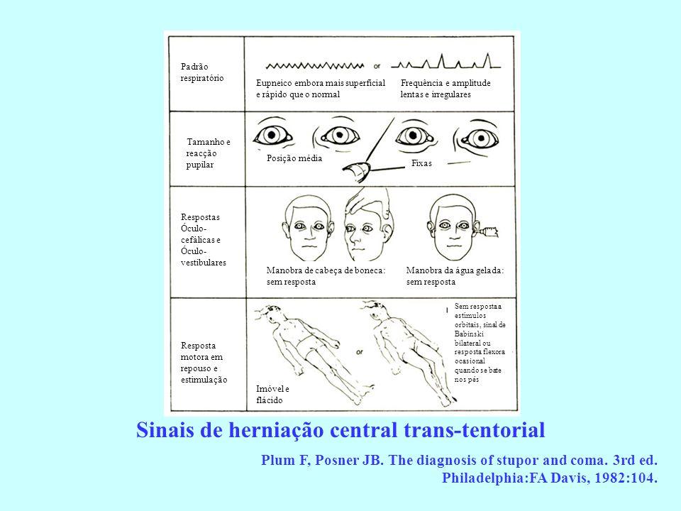 Sinais de herniação central trans-tentorial Plum F, Posner JB. The diagnosis of stupor and coma. 3rd ed. Philadelphia:FA Davis, 1982:104. Padrão respi