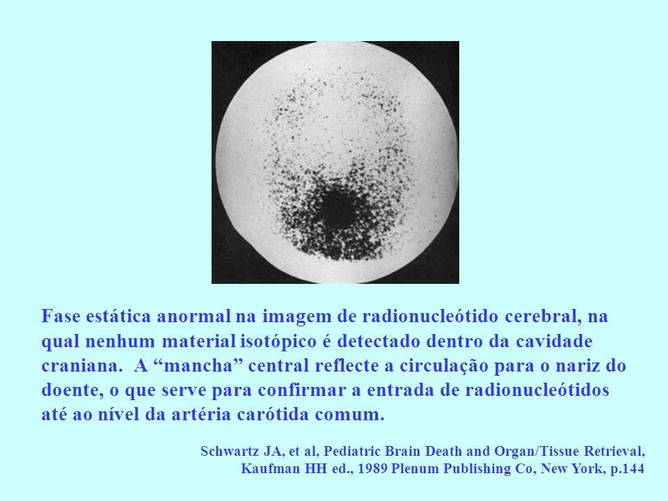 Fase estática anormal na imagem de radionucleótido cerebral, na qual nenhum material isotópico é detectado dentro da cavidade craniana. A mancha centr