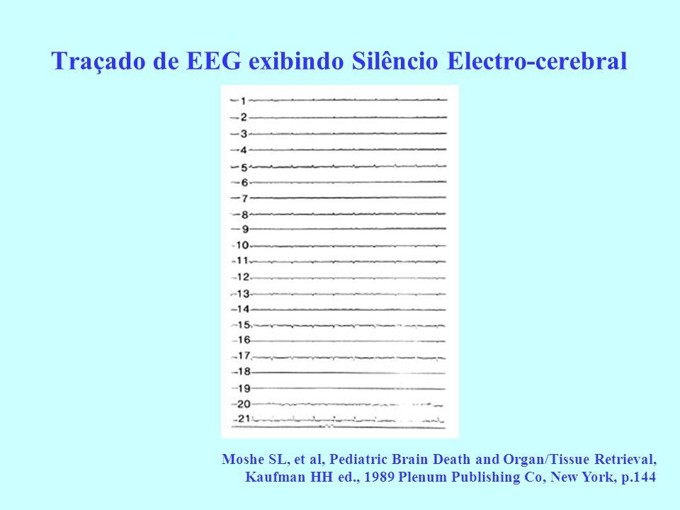 Traçado de EEG exibindo Silêncio Electro-cerebral Moshe SL, et al, Pediatric Brain Death and Organ/Tissue Retrieval, Kaufman HH ed., 1989 Plenum Publi