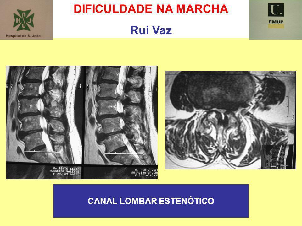 DIFICULDADE NA MARCHA Rui Vaz CANAL LOMBAR ESTENÓTICO