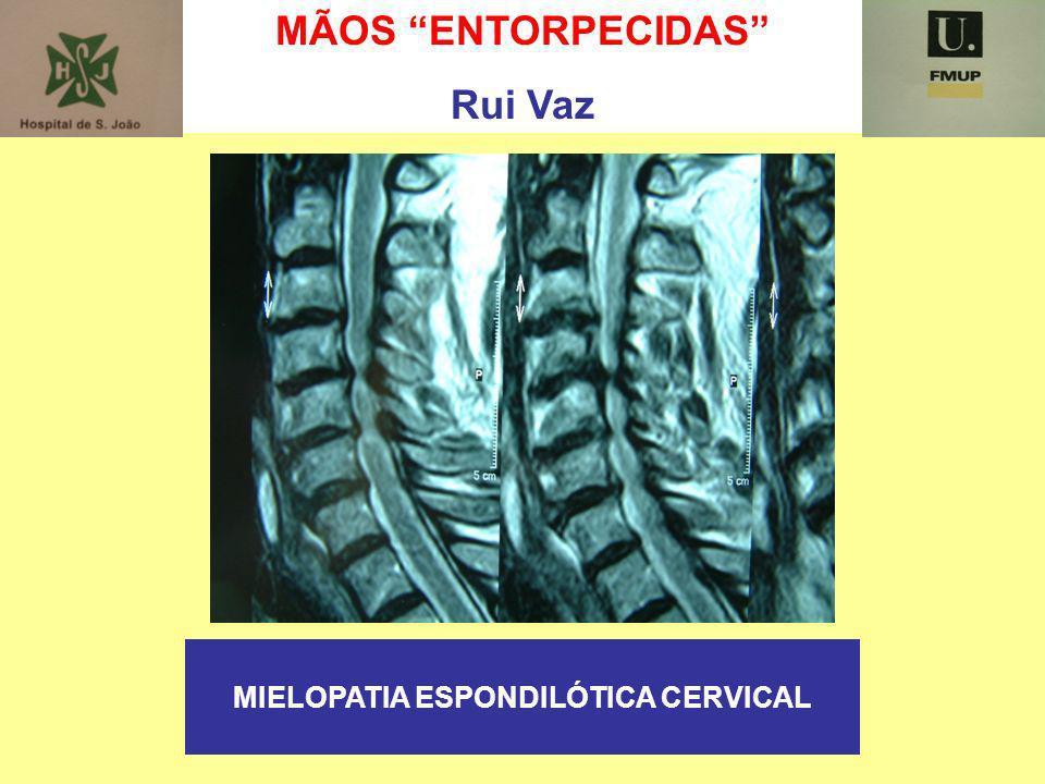 MÃOS ENTORPECIDAS Rui Vaz MIELOPATIA ESPONDILÓTICA CERVICAL