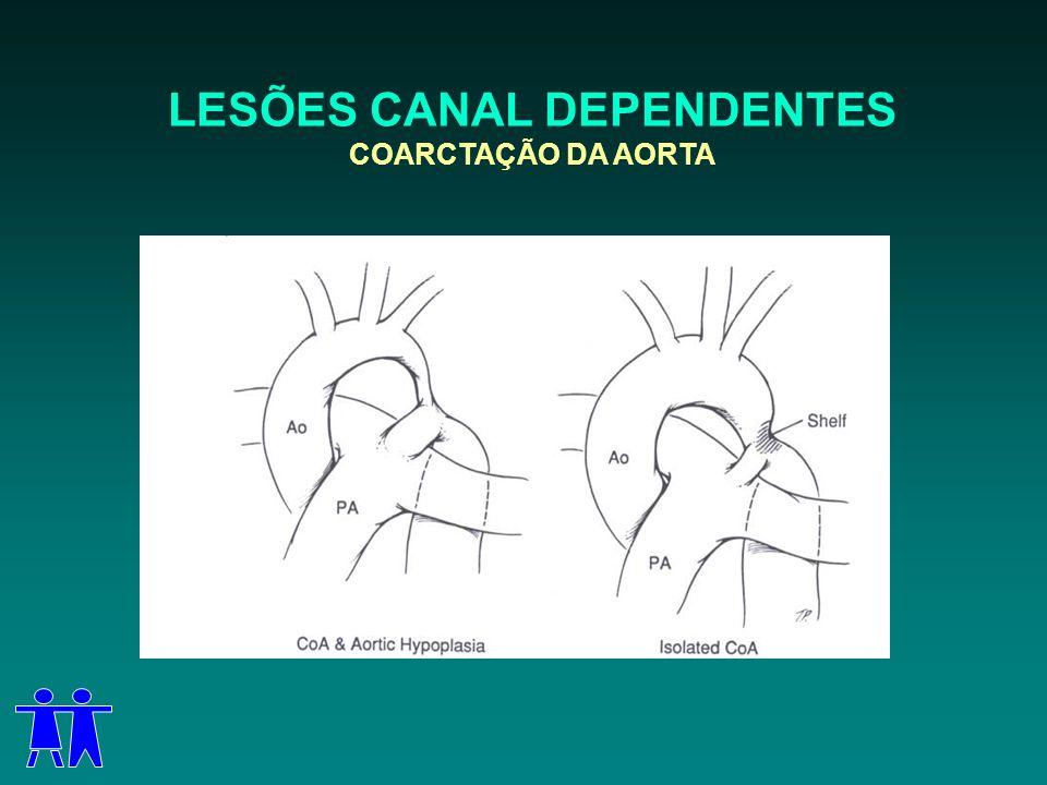 LESÕES CANAL DEPENDENTES COARCTAÇÃO DA AORTA