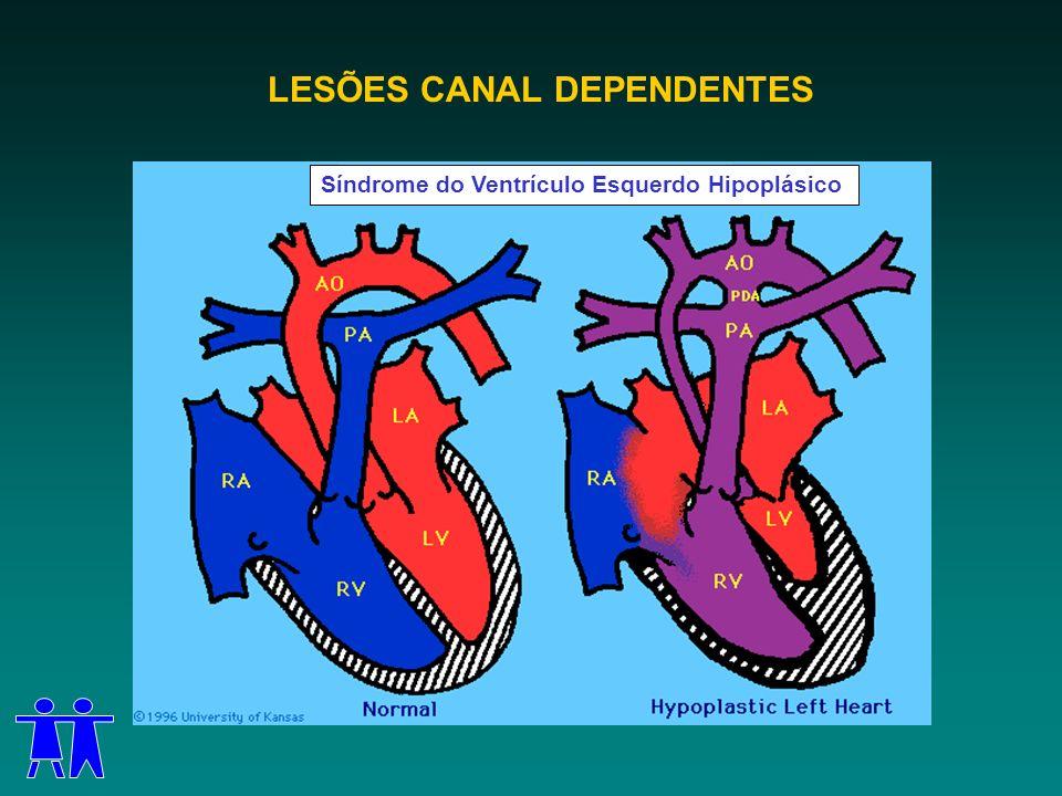 LESÕES CANAL DEPENDENTES Síndrome do Ventrículo Esquerdo Hipoplásico