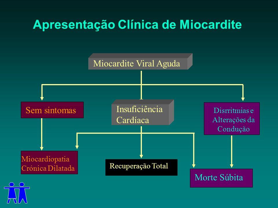 Miocardite Viral Aguda Insuficiência Cardíaca Recuperação Total Sem sintomas Miocardiopatia Crónica Dilatada Disrritmias e Alterações da Condução Mort