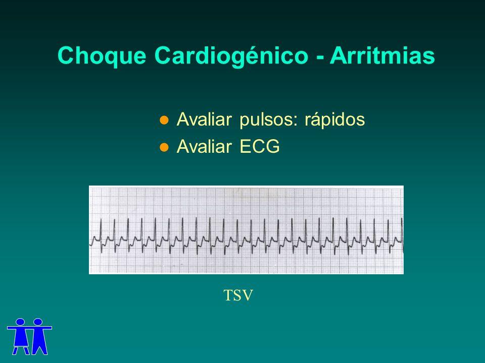 Choque Cardiogénico - Arritmias Avaliar pulsos: rápidos Avaliar ECG TSV