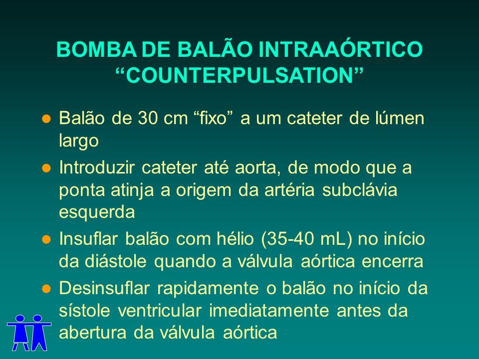 BOMBA DE BALÃO INTRAAÓRTICO COUNTERPULSATION Balão de 30 cm fixo a um cateter de lúmen largo Introduzir cateter até aorta, de modo que a ponta atinja