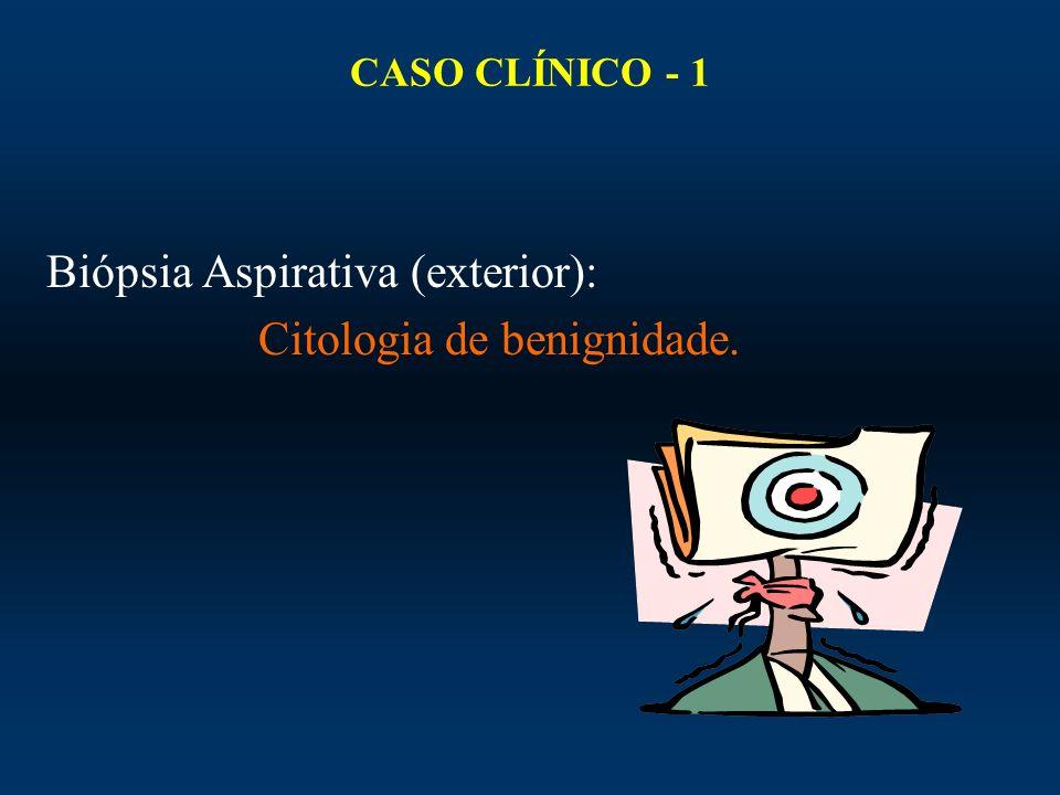 CASO CLÍNICO - 1 Biópsia Aspirativa (exterior): Citologia de benignidade.