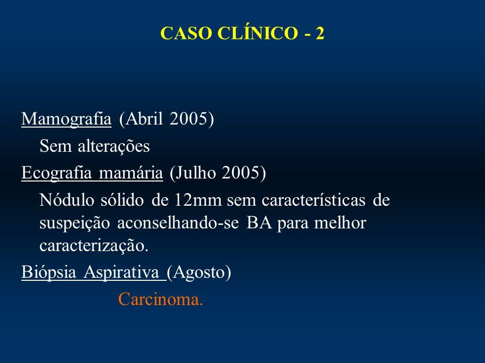 CASO CLÍNICO - 2 Mamografia (Abril 2005) Sem alterações Ecografia mamária (Julho 2005) Nódulo sólido de 12mm sem características de suspeição aconselh