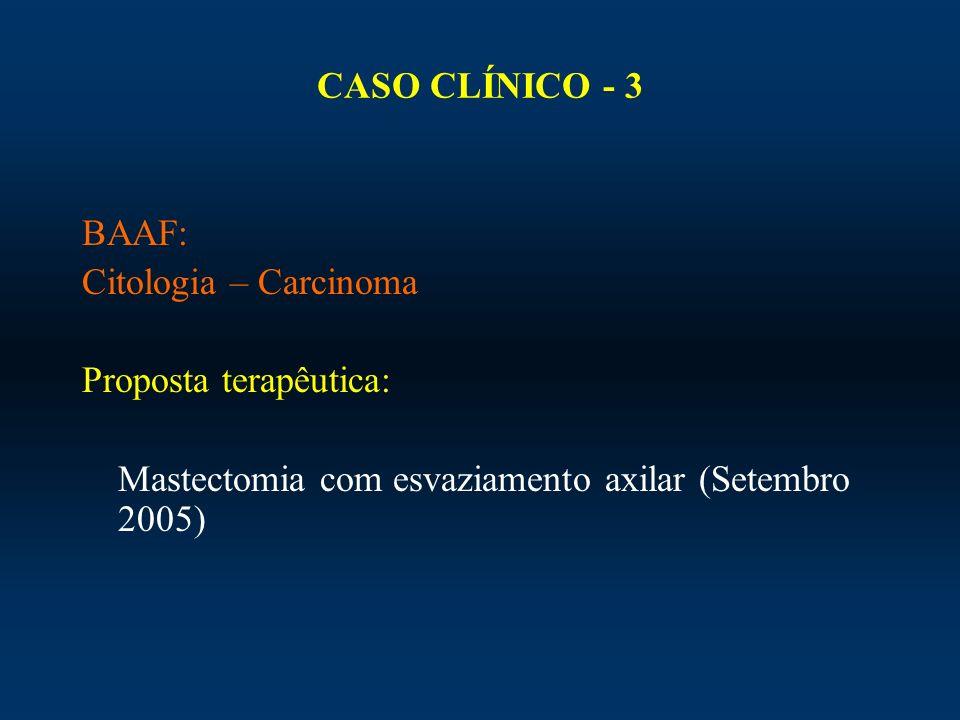 CASO CLÍNICO - 3 BAAF: Citologia – Carcinoma Proposta terapêutica: Mastectomia com esvaziamento axilar (Setembro 2005)
