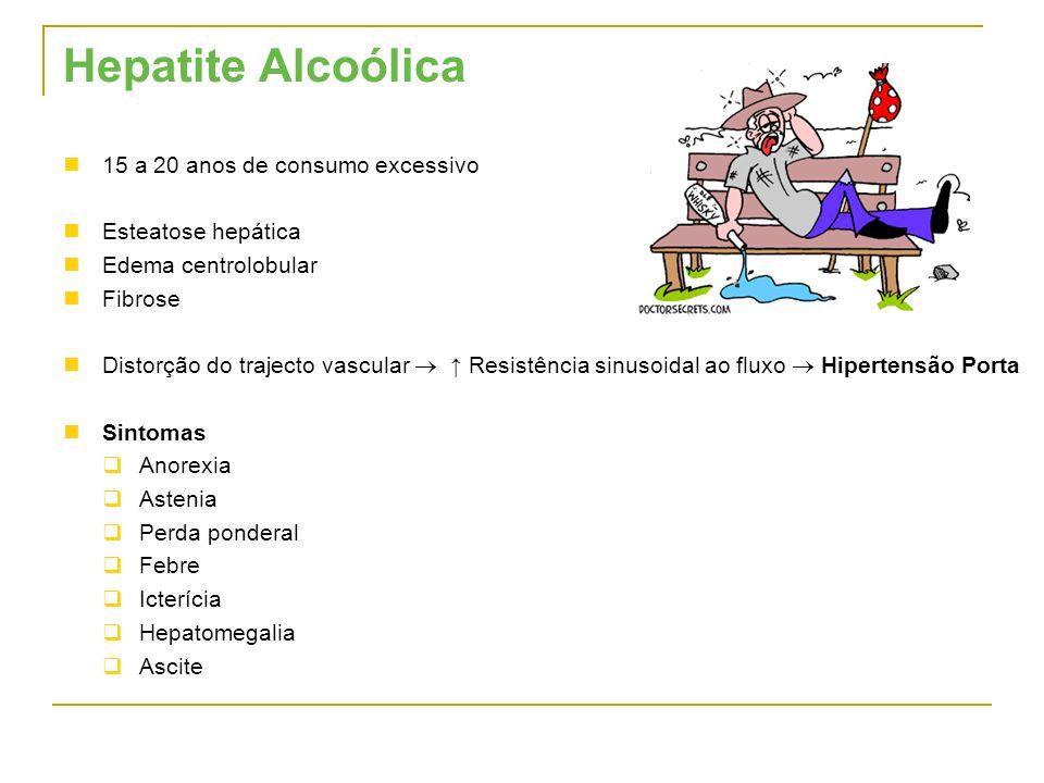 Hepatite Alcoólica 15 a 20 anos de consumo excessivo Esteatose hepática Edema centrolobular Fibrose Distorção do trajecto vascular Resistência sinusoi