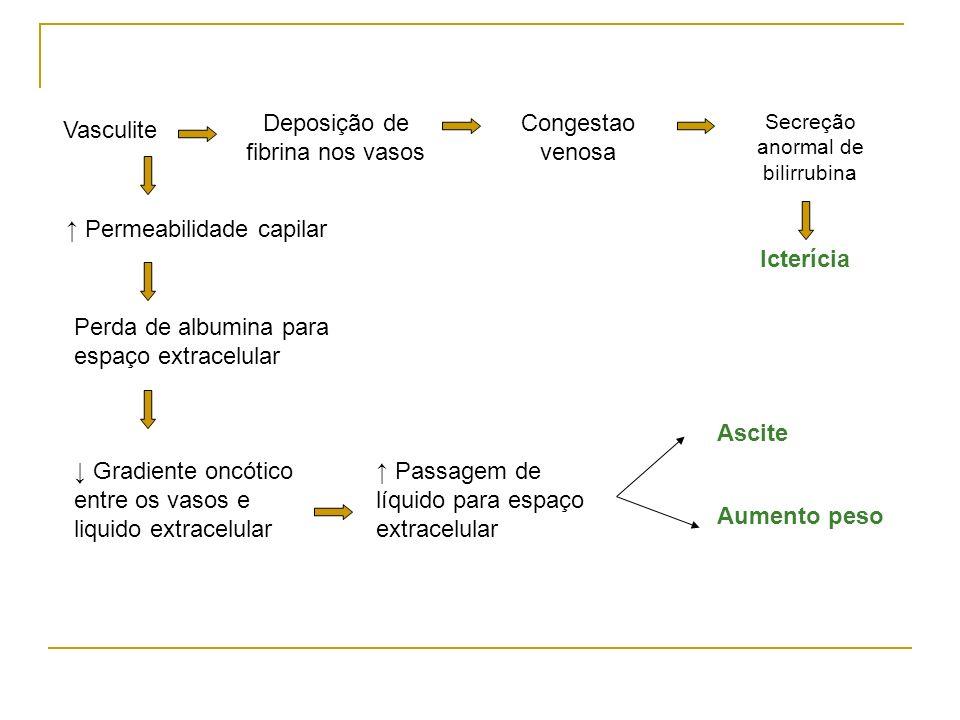 Vasculite Permeabilidade capilar Perda de albumina para espaço extracelular Gradiente oncótico entre os vasos e liquido extracelular Ascite Aumento pe