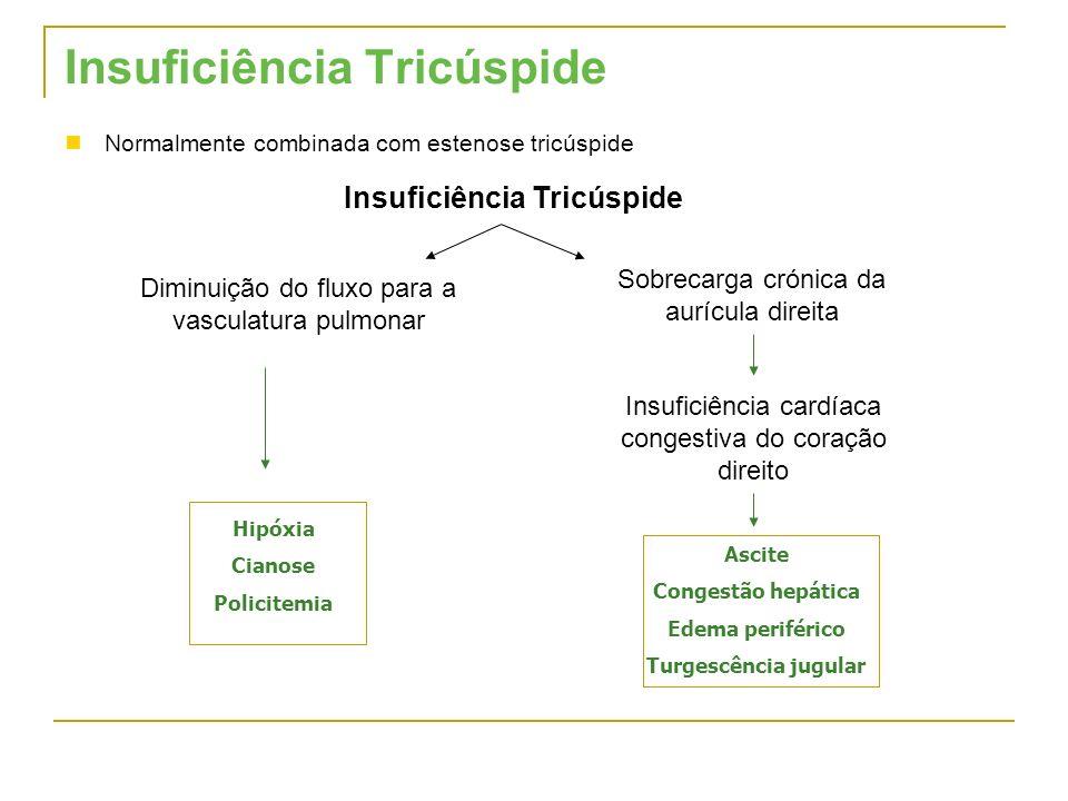 Insuficiência Tricúspide Normalmente combinada com estenose tricúspide Insuficiência Tricúspide Sobrecarga crónica da aurícula direita Insuficiência c